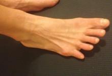 toe-2
